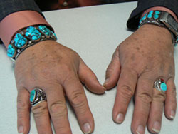 Scott Davis hands with turquois jewelry